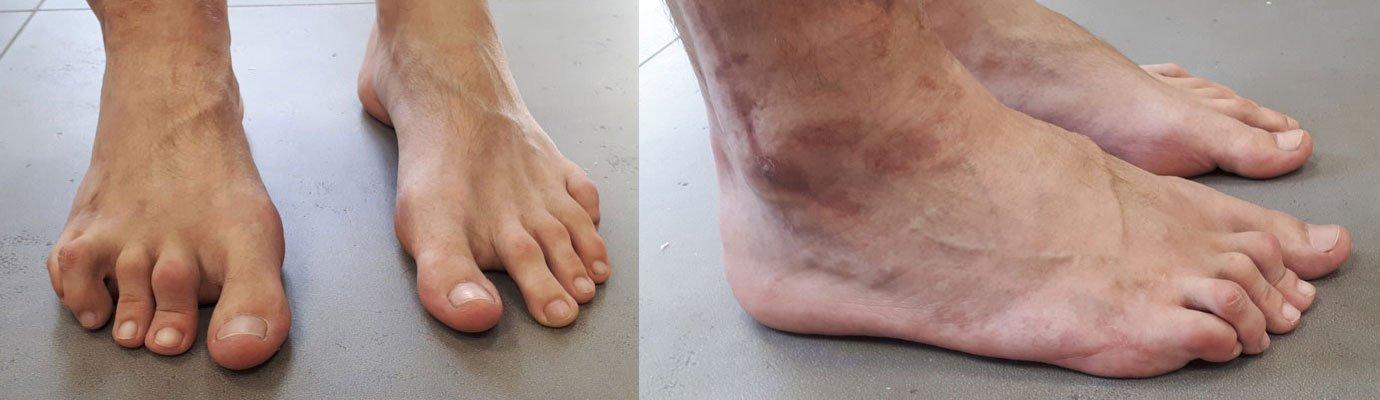 Griffes d'orteils