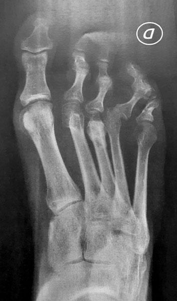 Radiographie pré opératoire