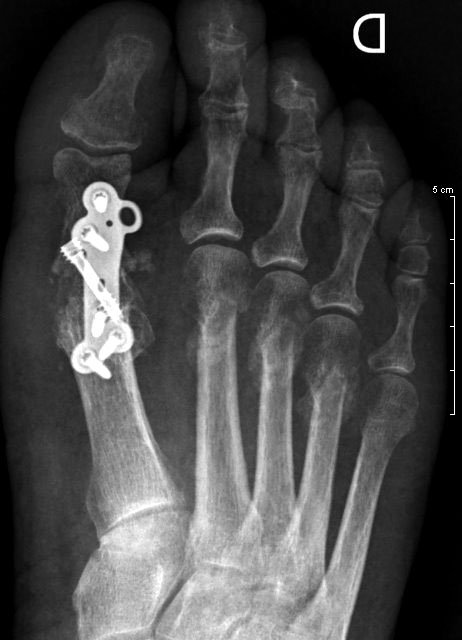 Radio Hallux Rigidus Arthrodèse