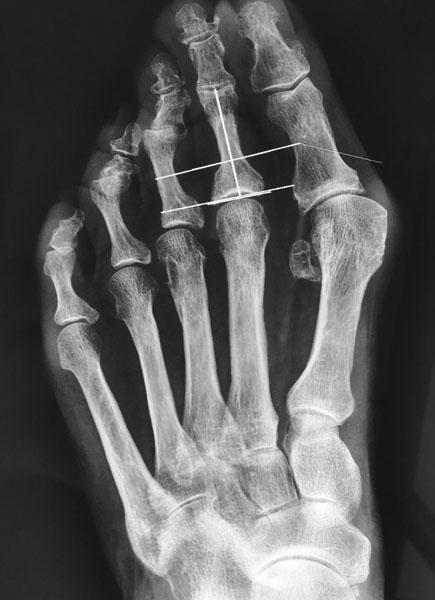 Radiographie d'un quintus varus